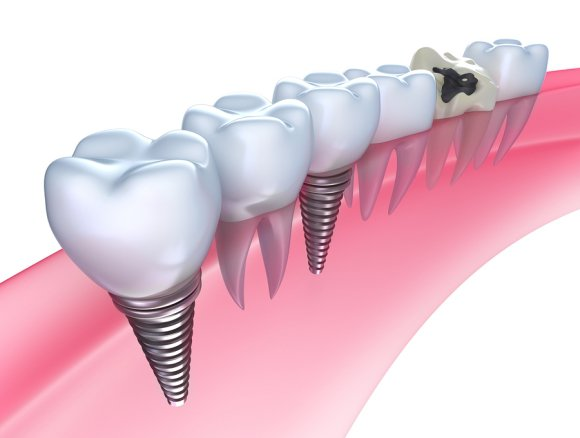 Dental Implants Glenview