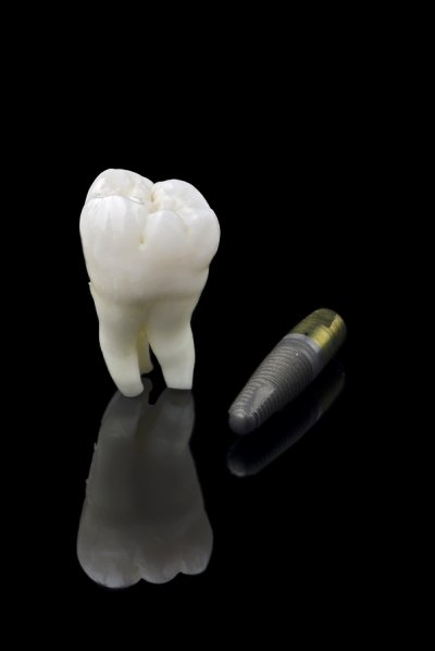 Glenview Dental Implants